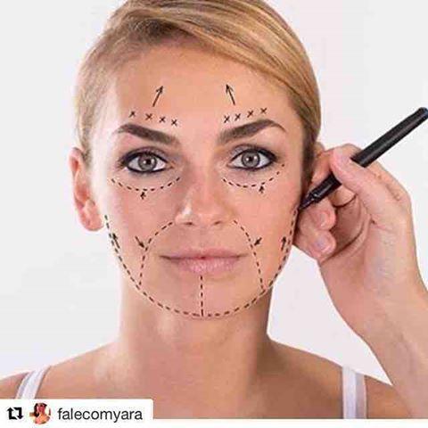 Fios Reabsorvíveis De Lifting Facial